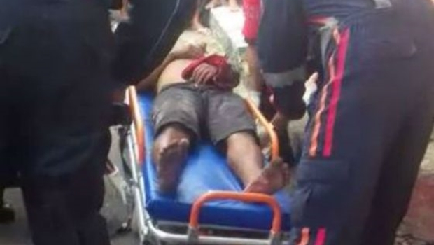 Moradores decepam mão de homem suspeito de assaltar senhora em Fortaleza