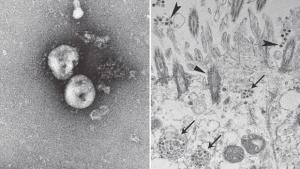 Efeito Coronavírus: Alta demanda da China por produtos hospitalares impacta mercado brasileiro