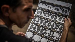 Exploração do amianto em Minaçu: entre diagnóstico e mão de obra
