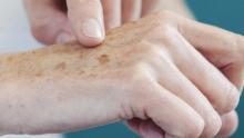 Mais de 30% dos tumores malignos no Brasil são de câncer de pele