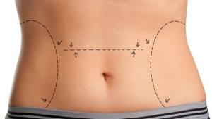 Cirurgião diz que procedimentos invasivos não podem ser considerados meros tratamentos estéticos