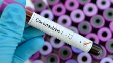 Em todo Brasil, 7.910 pessoas foram infectadas pelo novo coronavírus; Óbitos chegam a 299