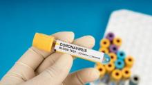 Veterinários serão convocados para reforçar combate à Covid-19