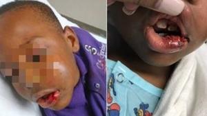Professor é preso por fraturar maxilar de aluno em sala de aula