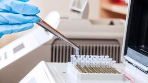 Gestão Iris rompe com laboratórios credenciados e contrata empresa mais cara