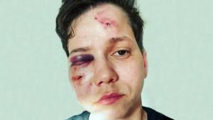Polícia descarta crime de homofobia e youtuber irá responder por denunciação caluniosa